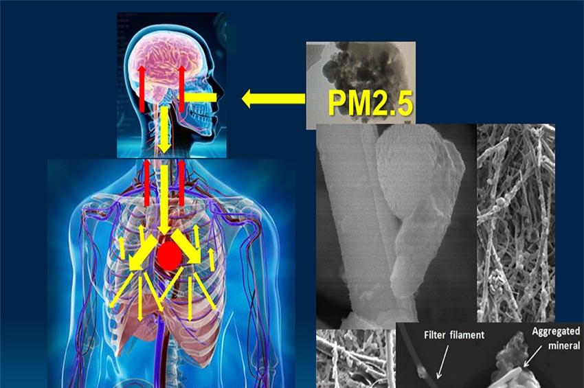 ราชวิทยาลัยอายุรแพทย์ฯห่วง! ฝุ่นพิษมรณะ PM2.5